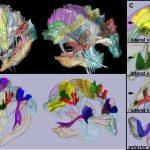 Brain Atlas