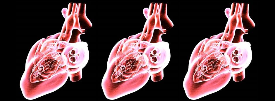 Virtual Heart Technology for Arrythmia